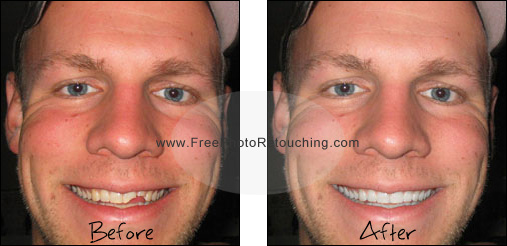 Fix chipped teeth with retouching